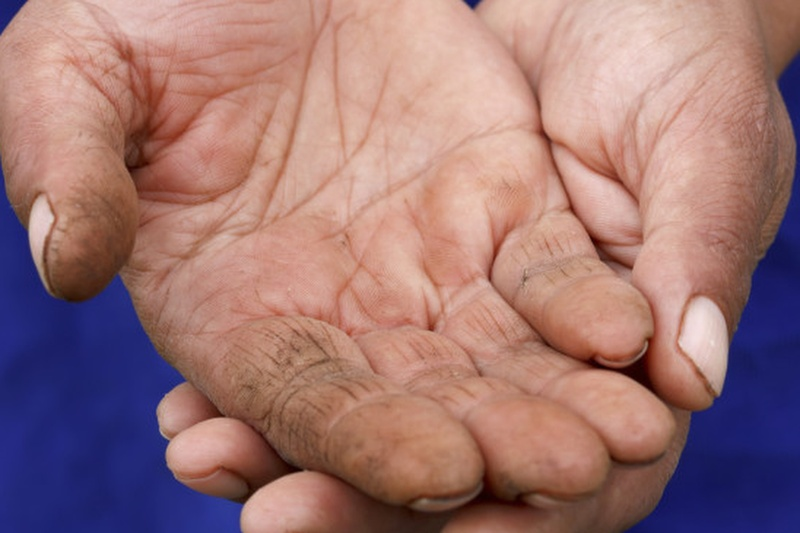 Needy-hands-3p-810x385 Cropped